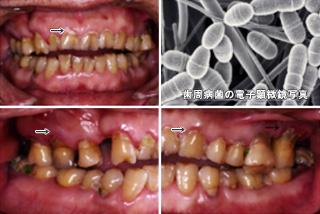 歯周病の原因1