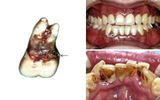 歯周病の原因2