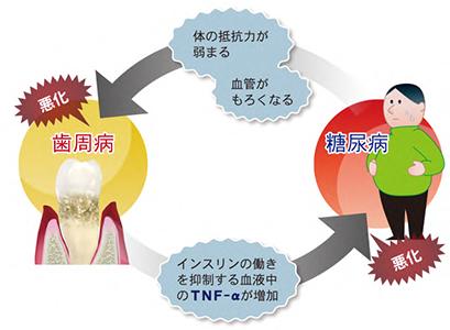 歯周病とメタボリックシンドローム