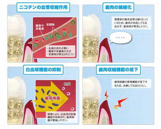日本臨床歯周病学会 | 歯周病と煙草の関係